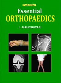 Essential of Orthopaedics