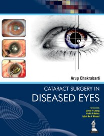 Cataract Surgery in Diseased Eyes