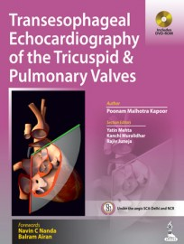 Transesophageal Echocardiography of the Tricuspid & Pulmonary Valves