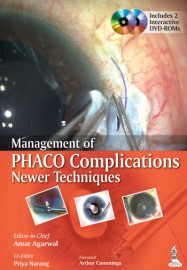Management of PHACO Complications Newer Techniques
