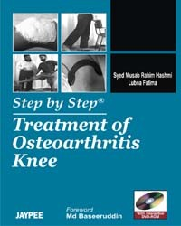 Step by Step Treatment of Osteoarthritis Knee with DVD Rom