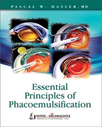 Essential Principles of Phacoemulsification